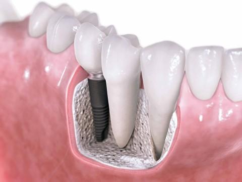 Carga inmediata: Suple la falta de piezas dentales