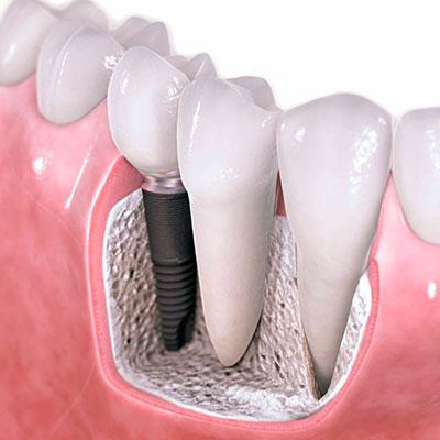 implantes-carga-inmediata