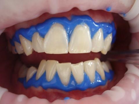 Blanqueamiento dental Paterna