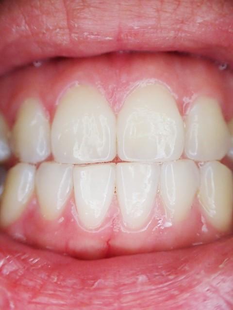 Implantes dentales Altea