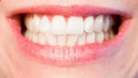 Implantes dentales, un gran aliado de tu sonrisa