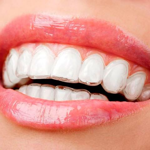 ¿Necesitas ortodoncias? En Clínica Dental ILC