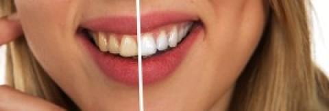El Blanqueamiento Dental