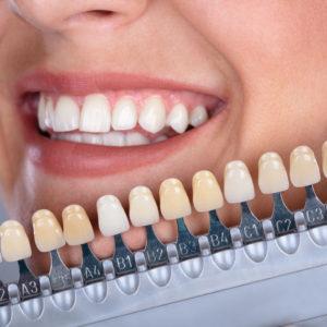 carillas dentales de cerámica o composite