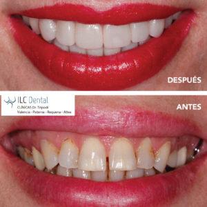 tratamiento carilla dental