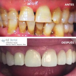 carillas dentales composite y porcelana