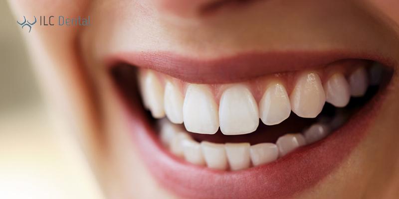 dientes blancos y sanos con blanqueamiento dental