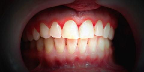 ¿Cómo tratar la gingivitis?