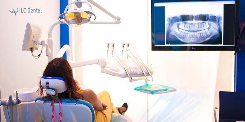 limpieza dental en clínica odontológica ILC Dental Altea