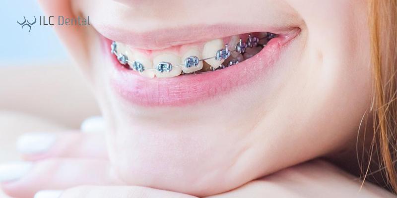 Ortodoncia infantil con brackets