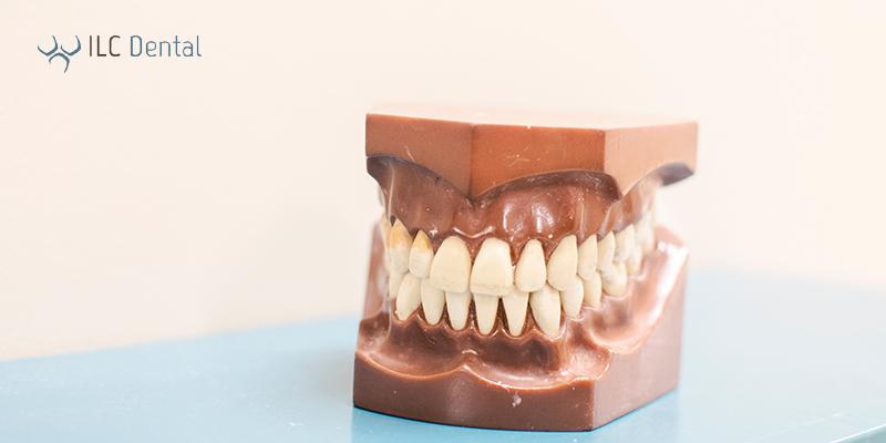 como tratar periodontitis y gingivitis