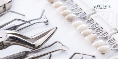 Carillas dentales: qué son y tipos